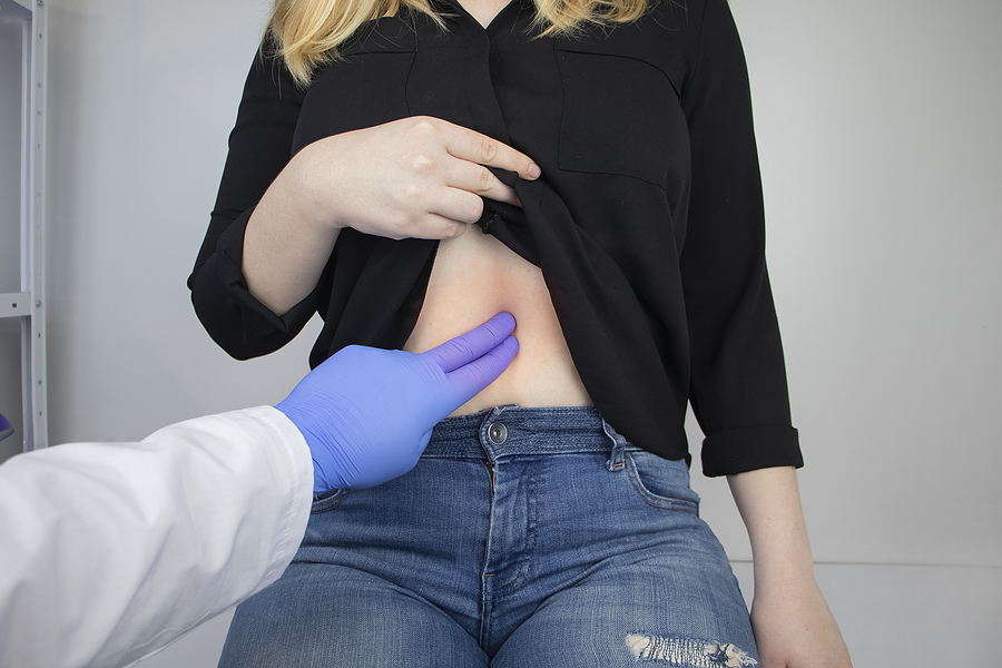 Specialist gastroenterologist in Melbourne checking a patient's stomach